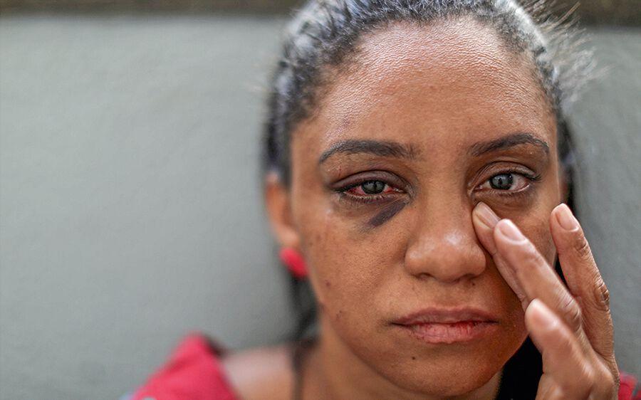 Verletzte Frau nach häuslicher Gewalt